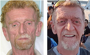 FACIAL REJUVENATION Daniel Pearce, shown prior to treatment on the left, was the first patient Pierone treated for lipoatrophy. Pearce's sunken cheeks resulted from a side effect of early HIV/AIDS drugs. The treatments gave Pearce a new look, shown at right.